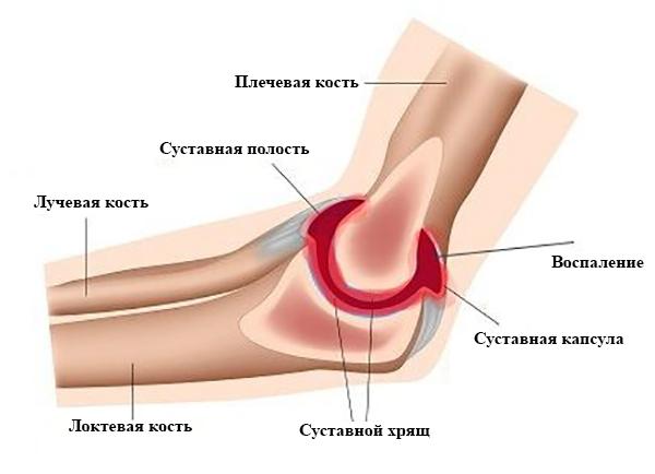 Синовит локтевого сустава