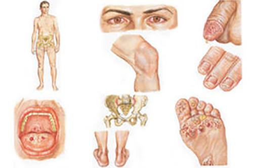Проявления недуга