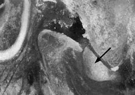 Снимок артроза