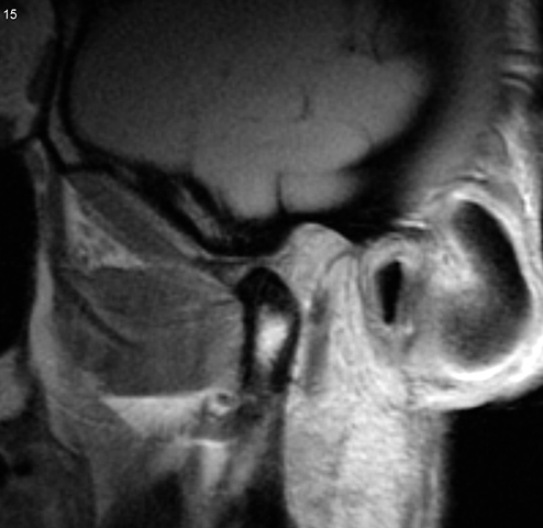 МРТ снимок челюсти