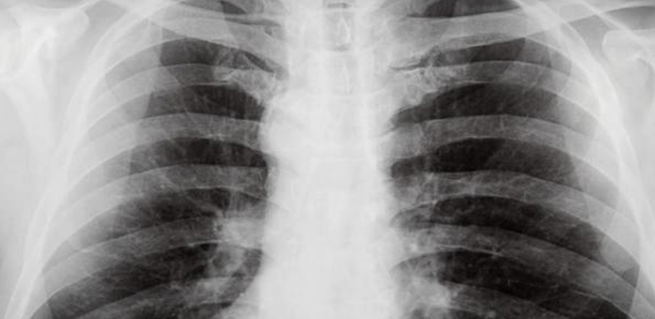 Снимок груди