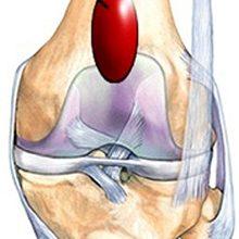 Супрапателлярный бурсит коленного сустава: симптомы и лечение