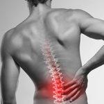 Спондилоартрит: классификация, диагностика и лечение