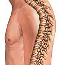 Кифоз грудного отдела позвоночника: причины, симптомы и лечение