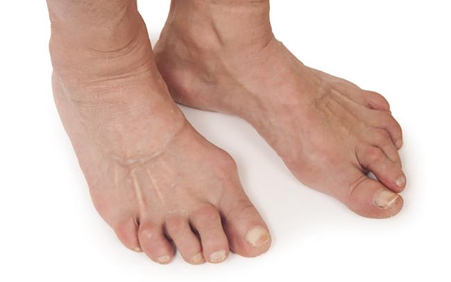 Изображение - Остеоартроз суставов стопы 2 степени treat12
