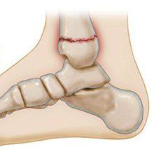 Трещина в голеностопе: симптомы, диагностика и лечение