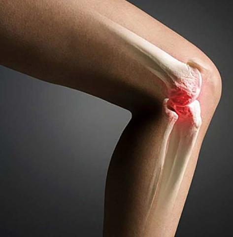 Как выглядит трещина в колене
