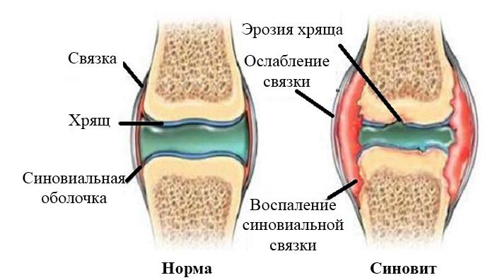 Экссудативный синовит