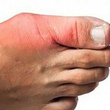 Вывих большого пальца ноги: симптомы, диагностика и лечение