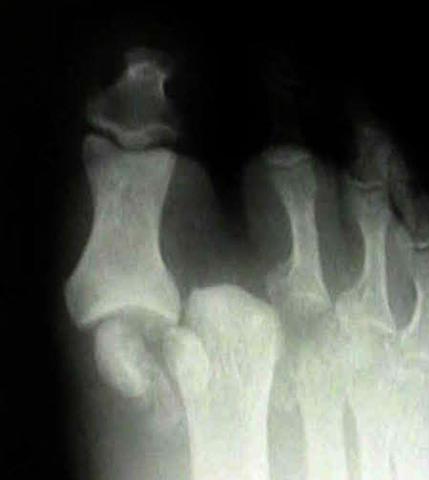 Вывих на рентгеновском снимке