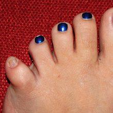 Вывих мизинца на ноге: виды, симптомы и как лечить