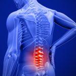 Заклинило спину в области поясницы: симптомы и что делать