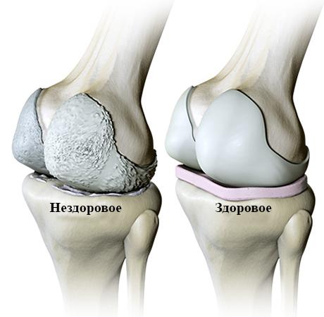 Нездоровое и здоровое колено