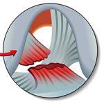 Разрыв связок коленного сустава: симптомы и методы лечения
