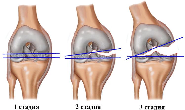 3 стадии растяжения связок