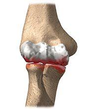 Артрит локтевого сустава — причины, симптомы и лечение