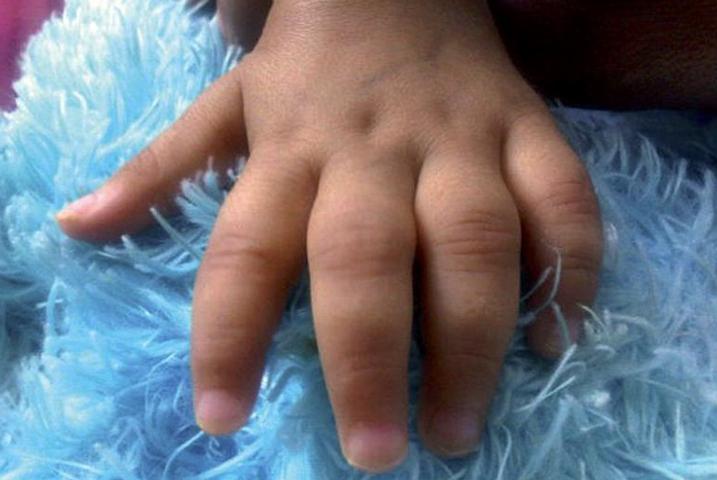 Артрит на руке у ребенка