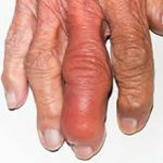 Инфекционный артрит: что это, причины, симптомы и лечение