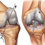 Пластика передней крестообразной связки коленного сустава — что это и как проводится