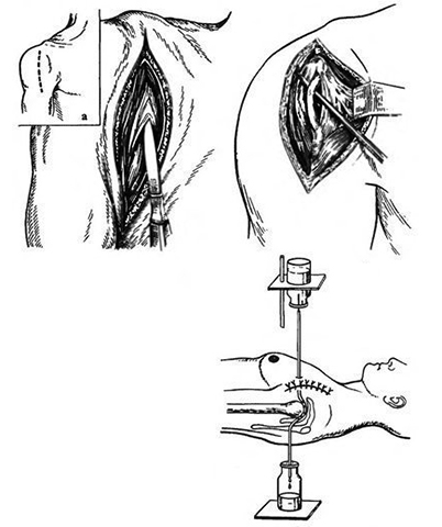 Как выглядит артротомия