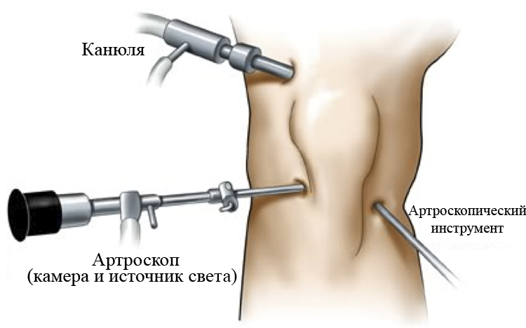 Артроскоп в колено