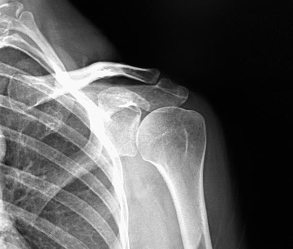 Изображение - Адгезивный капсулит плечевого сустава лечение br12