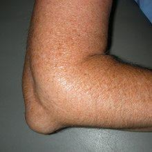 Отек локтевого сустава: причины, симптомы и лечение