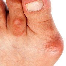 Бурсит большого пальца стопы: причины, симптомы и методы лечения