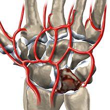 Болезнь Кинбека: признаки, диагностика и методы лечения