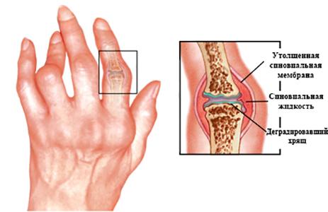 Как выглядит ревматоидный артрит