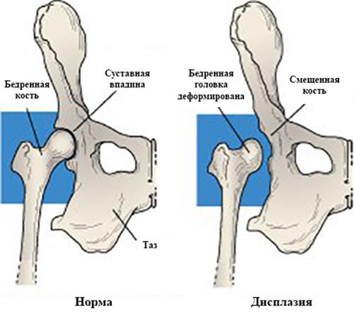 Изображение - Болезни и лечение тазобедренного сустава dis111