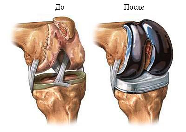 Эндопротезы коленного сустава виды
