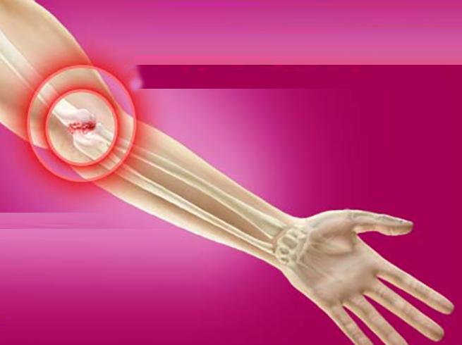 Как выглядит артрит локтя