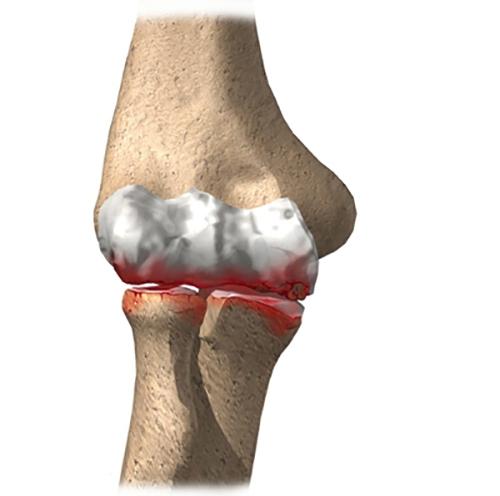 Как выглядит артрит локтевого сустава