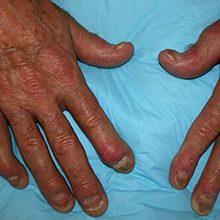 Псориатический артрит: что это, симптомы и лечение (с фото)
