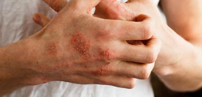 Симптомы острой ревматической лихорадки