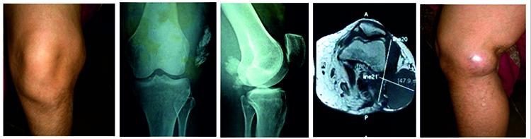 Как выглядит саркома коленного сустава