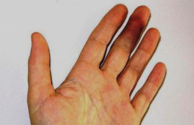 Гематома на пальце