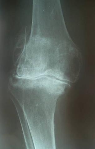 Гонартроз на рентгене