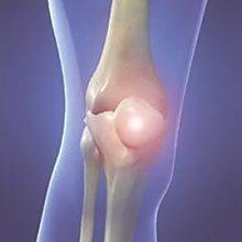 Гигрома коленного сустава: стадии, симптомы и лечение