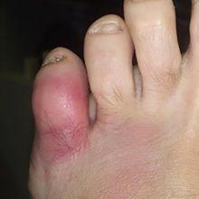 Ушиб мизинца на ноге: симптомы и первая помощь