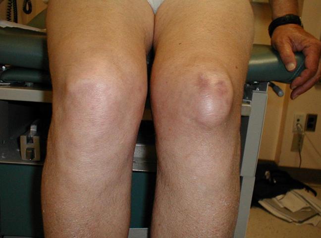 Как выглядит гигрома на колене