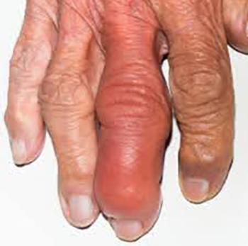 Как выглядит инфекционный артрит