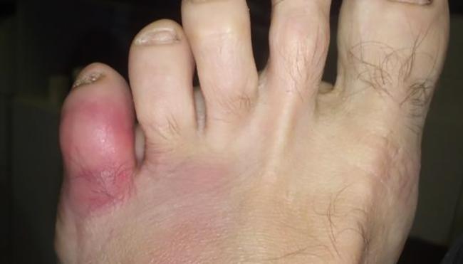 Как выглядит ушиб мизинца на ноге