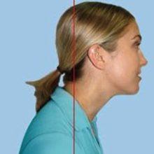 Кифоз шейного отдела позвоночника: причины, симптомы и лечение