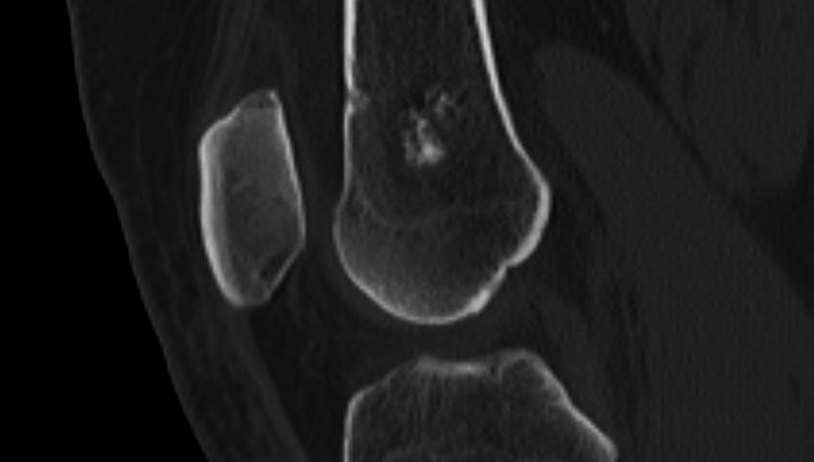 Инфаркт костного мозга бедренной кости на МРТ