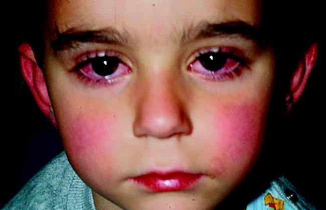 Мальчик с ревматической лихорадкой