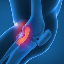 Растяжение связок: что это, симптомы и лечение