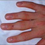 Опухают суставы на пальцах рук: причины и что делать