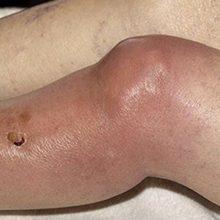 Гнойный бурсит коленного сустава: причины, симптоматика и как лечить